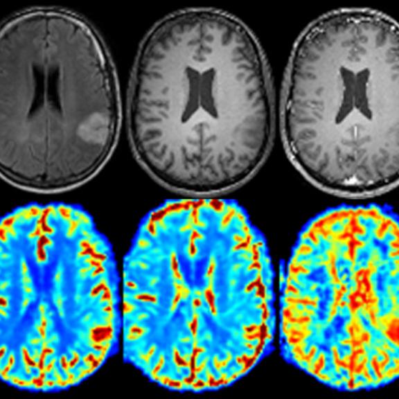 Un programme informatique capable de détecter et d'identifier automatiquement des lésions cérébrales