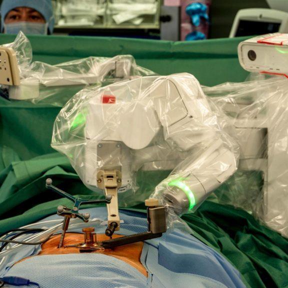 Ces robots qui assistent les chirurgiens