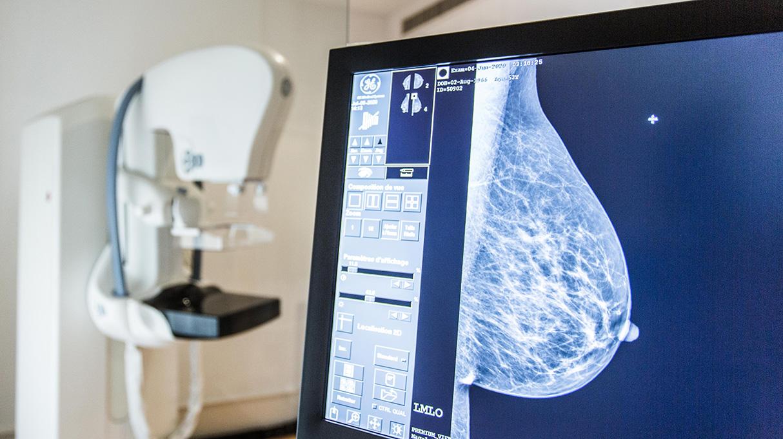 Mammographie Geneve Suisse